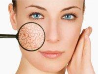 Компоненты в косметике для сухой кожи
